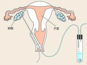 採卵法、麻酔法