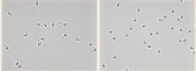 精子頭部空胞検査