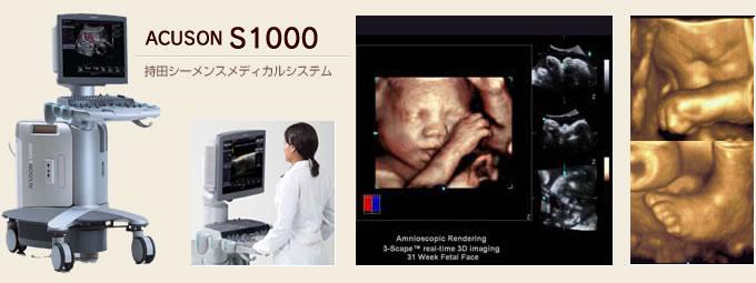 4D超音波診断装置ACUSON S1000