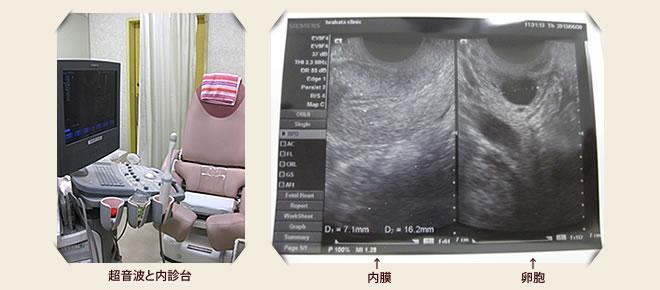 経腟超音波検査