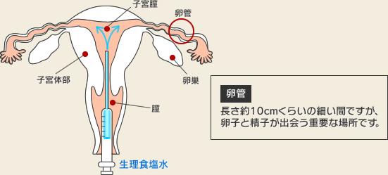 子宮卵管造影(HSG)検査